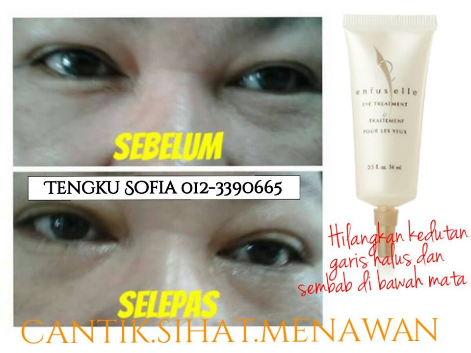 eye treatment testimoni