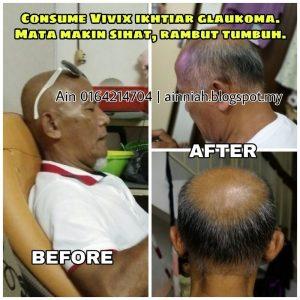 vivix botak