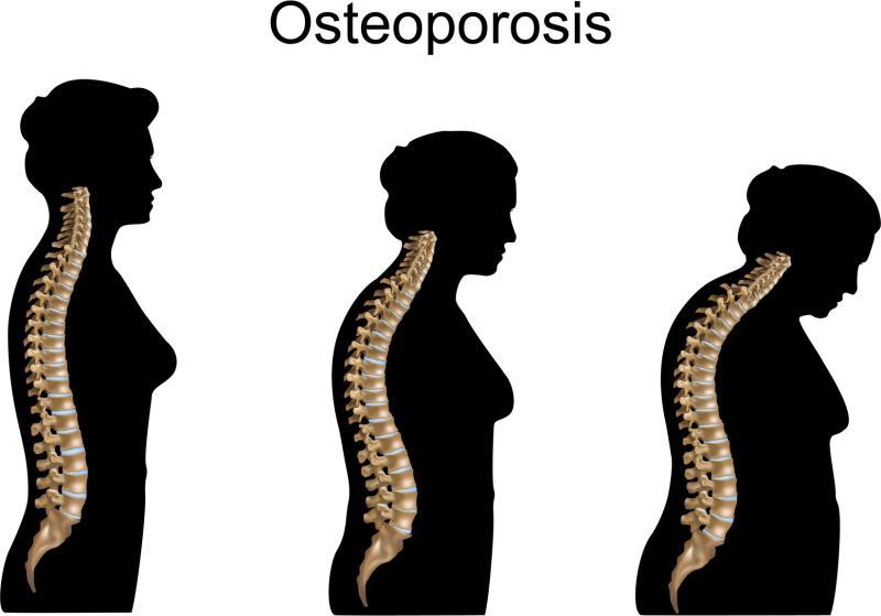 Kesan Osteoporosis