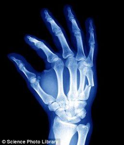 shaklee patah tulang